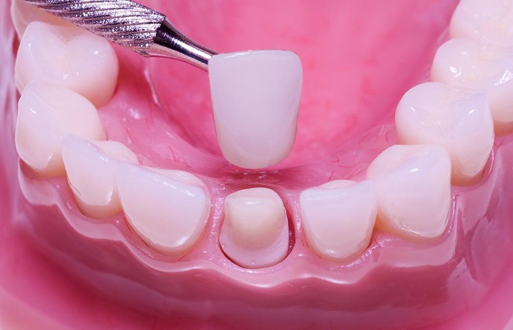 phục hình răng sứ trong 2 lần hẹn