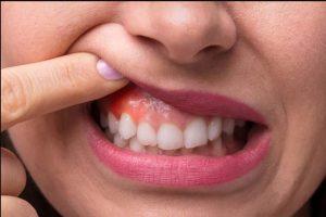 viêm lợi có mủ, sưng nướu răng có mủ, viêm chân răng có mủ, viêm nướu răng có mủ, cách chữa viêm lợi có mủ tại nhà, cách trị nướu răng có mủ, chữa viêm chân răng có mủ, chân răng có mủ, nằm mơ nhổ răng, nướu răng có mủ, sưng lợi có mủ, chữa viêm chân răng có mủ tại nhà, sưng lợi có mủ uống thuốc gì, nướu răng sưng, cách điều trị viêm lợi có mủ, sưng nướu răng trong cùng có mủ, chân răng có mủ uống thuốc gì, viêm lợi có mủ uống thuốc gì, nướu răng bị sưng có mủ, lợi sưng có mủ, nướu răng bị sưng và có mủ, lợi có mủ, nú răng có mủ, lợi sưng mủ, sưng chân răng có mủ, nướu răng sưng có mủ, viêm lợi mủ, sưng nướu có mủ, lợi bị sưng mủ, viêm răng có mủ, răng có mủ, mủ ở chân răng, nướu sưng có mủ, viêm chân răng có mủ uống thuốc gì, mủ ở lợi, nướu có mủ, chân răng có mủ trắng, viêm nướu có mủ, lợi bị sưng và có mủ, mọc mủ ở lợi, mủ ở nướu răng, chân răng bị sưng có mủ, mưng mủ chân răng