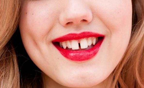 răng cửa thưa, răng cửa thưa tướng số,răng thưa tướng số,răng cửa hở trong tướng số,răng thưa nói láo,người răng thưa,đàn ông răng cửa thưa,con trai răng thưa ,răng thưa sướng hay khổ,những người răng thưa,người có răng cửa thưa,phụ nữ răng cửa thưa,đàn ông răng thưa,tướng người răng thưa,răng cửa hở,răng thưa hàm trên ,tướng răng thưa,con gái răng cửa thưa,người răng cửa thưa,răng thưa,răng thưa thì sao,răng cửa có khe hở,răng thưa nói lên điều gì,răng cửa thưa nói lên điều gì ,xem tướng răng cửa thưa,hở răng cửa,răng thưa hàm dưới tướng số,tướng răng cửa thưa,răng thưa thừa của,phụ nữ răng thưa,con trai răng cửa thưa,thưa răng cửa ,răng cửa thưa phong thuỷxem tướng răng cửa hở, răng sưa nói láo, răng thưa hàm trên tướng số, răng cửa bị thưa, răng cửa to nói lên điều gì, răng cửa to và thưa