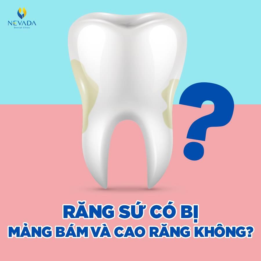răng sứ có bị mảng bám