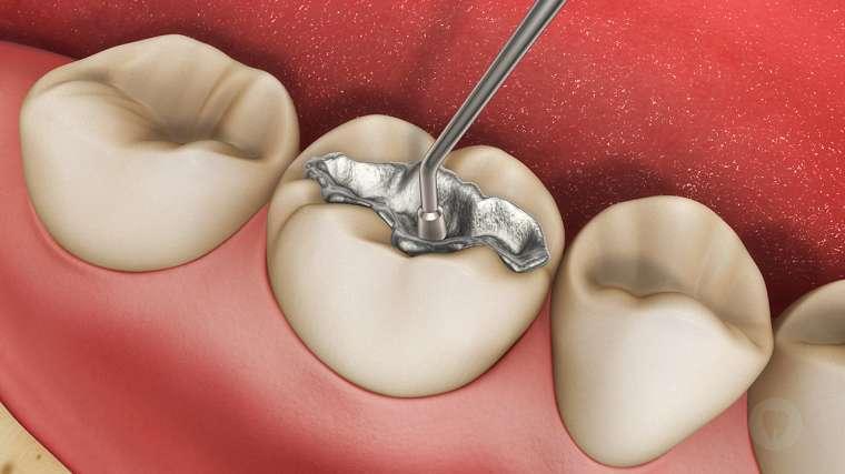 nguyên nhân gây sâu răng ở người lớn, nguyên nhân gây sâu răng, nguyên nhân gây sâu răng ở trẻ, nguyên nhân làm sâu răng, nguyên nhân gây ra sâu răng, nguyên nhân gây bệnh sâu răng, các nguyên nhân gây sâu răng, những nguyên nhân gây sâu răng, nguyên nhân gây bệnh sâu răng ở trẻ, nguyên nhân gây ra bệnh sâu răng