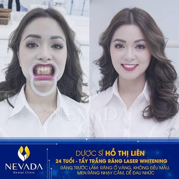 tác nhân khiến răng ố vàng, tác nhân khiến răng bị ố vàng