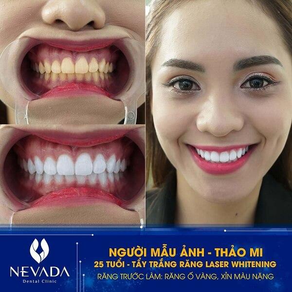 cách tẩy trắng răng tại nhà nhanh nhất, cách tẩy trắng răng tại nhà hiệu quả nhất, cách tẩy trắng răng tại nhà, cách tẩy trắng răng tại nhà hiệu quả, các cách tẩy trắng răng tại nhà, cách tự tẩy trắng răng tại nhà, tẩy trắng răng tại nhà mất bao lâu, tẩy trắng răng tại nhà trong bao lâu, tẩy trắng răng tại nhà webtretho, tẩy trắng răng tại nhà bao lâu, tẩy trắng răng tại nhà có tốt không