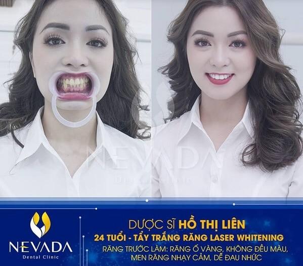 Top 11 địa chỉ nha khoa tẩy trắng răng tốt nhất Hà Nội