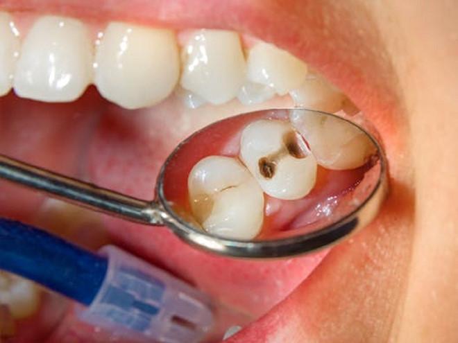 trường hợp nào có thể trám răng