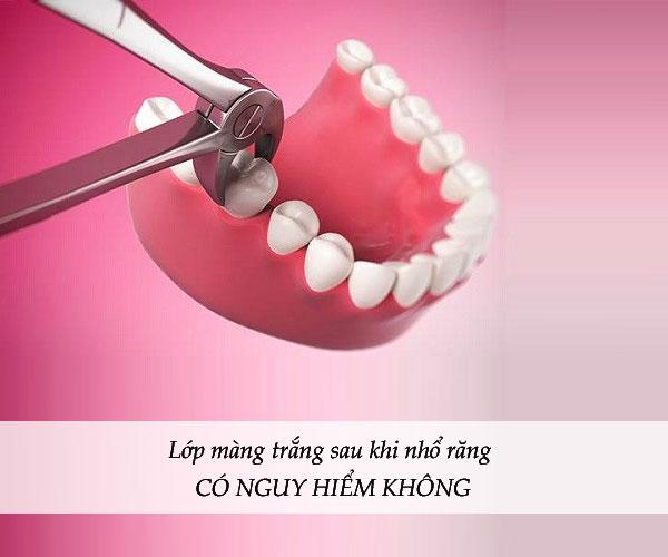 màng trắng sau khi nhổ răng, màng trắng sau khi nhổ răng là gì, xuất hiện màng trắng sau khi nhổ răng, dấu hiệu nhiễm trùng sau khi nhổ răng, sưng nướu sau khi nhổ răng, nhổ răng bị mưng mủ, nhiễm trùng sau khi nhổ răng, nhiễm trùng sau nhổ răng, Mảng trắng sau nhổ răng, chỗ nhổ răng có màu trắng, vết nhổ răng có màng trắng, ổ răng sau nhổ có mùi hôi, nhổ răng bị nhiễm trùng, nhổ răng khôn bị nhiễm trùng, dấu hiệu bị nhiễm trùng khi nhổ răng khôn, dấu hiệu nhiễm trùng sau khi nhổ răng khôn, dấu hiệu của nhiễm trùng răng, dấu hiệu viêm nhiễm sau nhổ răng, lớp màng trắng sau khi nhổ răng, màng trắng sau khi nhổ răng khôn, xuất hiện lớp màng trắng sau khi nhổ răng