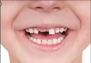thay răng sữa, thay răng sữa bao lâu thì mọc, tuổi thay răng sữa, trình tự thay răng sữa, trẻ chậm thay răng sữa, trẻ thay răng sữa, lịch thay răng sữa, mấy tuổi thay răng sữa, thứ tự thay răng sữa, thay răng sữa ở trẻ, bé thay răng sữa, bé 5 tuổi thay răng sữa, trẻ 7 tuổi chưa thay răng sữa, trẻ em thay răng sữa lúc mấy tuổi, thay răng sữa, thay răng sữa bao lâu thì mọc, tuổi thay răng sữa, trình tự thay răng sữa, trẻ chậm thay răng sữa, trẻ thay răng sữa, lịch thay răng sữa, mấy tuổi thay răng sữa, thứ tự thay răng sữa, thay răng sữa ở trẻ, bé thay răng sữa, bé 5 tuổi thay răng sữa, trẻ 7 tuổi chưa thay răng sữa, trẻ em thay răng sữa lúc mấy tuổi, thay răng sữa, thay răng sữa bao lâu thì mọc, tuổi thay răng sữa, trình tự thay răng sữa, trẻ chậm thay răng sữa, trẻ thay răng sữa, lịch thay răng sữa, mấy tuổi thay răng sữa, thứ tự thay răng sữa, thay răng sữa ở trẻ, bé thay răng sữa, bé 5 tuổi thay răng sữa, trẻ 7 tuổi chưa thay răng sữa, trẻ em thay răng sữa lúc mấy tuổi, thay răng sữa, thay răng sữa bao lâu thì mọc, tuổi thay răng sữa