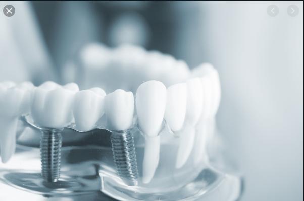 bọc răng sứ bị sâu, giá bọc răng sứ bị sâu, bọc răng sứ thẩm mỹ, có nên bọc răng sứ, bọc răng sứ có bền không, bọc răng sứ nguyên hàm giá bao nhiêu, bọc răng sứ không mài, bọc răng sứ mất bao lâu, có nên bọc răng sứ không, có nên bọc răng sứ không cá