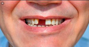 nhổ răng cửa, cách nhổ răng cửa không đau, nhổ răng cửa hàm trên, nhổ răng cửa mọc lệch, nhổ răng cửa hàm dưới, nhổ răng cửa có nguy hiểm không, nhổ răng cửa trồng lại, nhổ răng cửa có đau không, nhổ răng cửa bị hô, nhổ răng cửa lâu mọc, nhổ răng cửa hàm trên có nguy hiểm không, nhổ răng cửa trên, nhổ răng cửa cho bé, nhổ răng cửa có sao không, nhổ răng cửa có ảnh hưởng gì không, nhổ răng cửa bao lâu thì trồng lại được, nhổ răng cửa hàm trên cho bé, nhổ răng cửa mọc ngược, nhổ răng cửa bao nhiêu tiền, có nên nhổ răng cửa không, có nên nhổ răng cửa mọc lệch, có nên nhổ răng cửa, nhổ răng cửa giá bao nhiêu, cách nhổ răng cửa, giá nhổ răng cửa, kìm nhổ răng cửa hàm trên, nhổ răng cửa làm đẹp, chi phí nhổ răng cửa, nhổ răng cửa dưới, nhổ răng cửa hàm dưới mọc lệch, nhổ răng cửa ăn gì, nhổ răng cửa mọc thừa, sau khi nhổ răng cửa, nhổ răng cửa số 2, nhổ răng cửa bị sâu, cách nhổ răng cửa cho bé, nhổ răng cửa hàm dưới cho bé, nhổ răng cửa có nguy hiểm ko, nhổ răng cửa đánh con gì, cách nhổ răng cửa tại nhà, kìm nhổ răng cửa hàm dưới, nhổ răng cửa nguy hiểm không, nhổ răng cửa không đau, kỹ thuật nhổ răng cửa, nhổ răng cửa mọc ngầm, niềng răng nhổ răng cửa