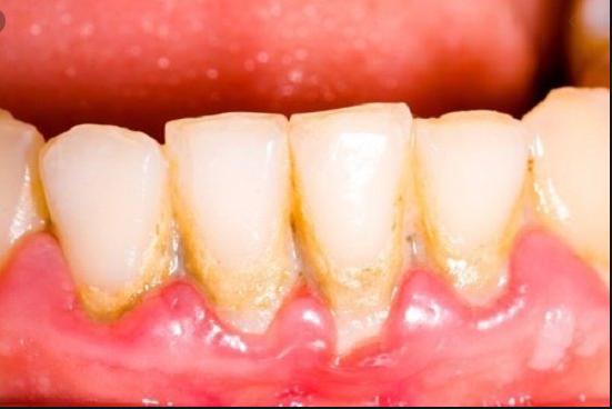 cao răng là gì, lấy cao răng là gì, cao răng hình thành như thế nào, cao răng hình thành từ đâu, cao răng hình thành, Cao răng hình thành, cao răng là gì wikipedia, cao răng là gì in english, bệnh cao răng là gì, cạo cao răng là gì, Cao răng là gì