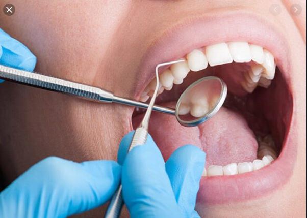 lấy cao răng có bị lây bệnh, lấy cao răng có bị lây bệnh không, lấy cao răng có tác hại gì không, lấy cao răng lây bệnh, lấy cao răng có lây bệnh không, lấy cao răng có sợ lây bệnh, lấy cao răng có sợ lây bệnh không, lây bệnh sau khi lấy cao răng, lấy cao răng