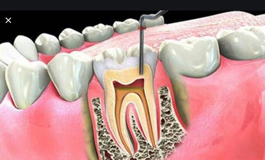 đặt thuốc diệt tủy răng, đặt thuốc diệt tủy răng bị nhức, thuốc diệt tủy răng, đặt thuốc diệt tủy răng bao lâu, nuốt phải thuốc diệt tủy răng, đặt thuốc diệt tủy răng có đau không, thuốc diệt tủy răng có độc không, các loại thuốc diệt tủy răng, đặt thuốc diệt tủy răng khi mang thai, thuốc diệt tủy răng là gì, thuốc diệt tủy răng septodont, đặt thuốc diệt tủy răng bị đau, đặt thuốc diệt tủy răng là gì, tác dụng của thuốc diệt tủy răng, Thuốc diệt tủy răng