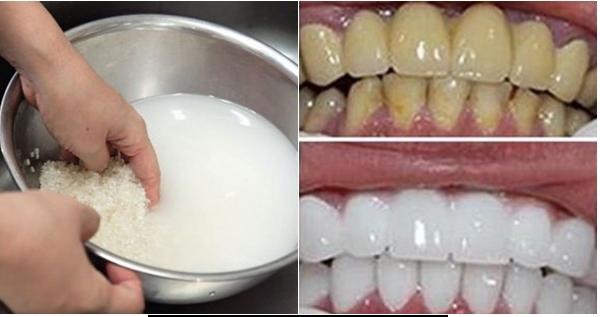 Cách làm trắng răng bằng nước vo gạo, làm trắng răng bằng nước vo gạo,