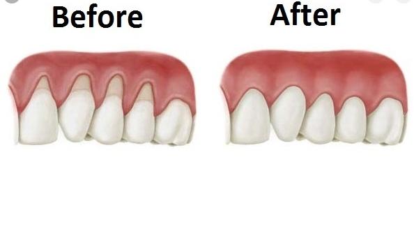 thuốc chữa tụt lợi, ăn gì để chữa tụt lợi, chữa tụt lợi tại nhà, cách chữa tụt lợi tại nhà, cách chữa tụt lợi chân răng, cách chữa tụt lợi chân răng tại nhà, cách chữa tụt lợi chảy máu chân răng, chữa tụt lợi ở đâu, chữa tụt lợi chân răng, chữa tụt lợi chân răng tại nhà, chữa tụt lợi bằng nha đam, chữa tụt lợi như thế nào, cách chữa tụt lợi bằng dân gian, cách chữa tụt lợi răng, mẹo chữa tụt lợi, chữa tụt lợi nặng, các phương pháp điều trị tụt lợi, cách điều trị tụt lợi, điều trị tụt lợi chân răng, điều trị tụt lợi tại nhà, cách điều trị tụt lợi tại nhà, cách điều trị tụt lợi chân răng