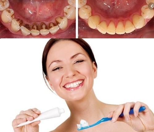 lưu ý sau khi lấy cao răng, những lưu ý sau khi lấy cao răng, những điều lưu ý sau khi lấy cao răng, Những điều cần lưu ý sau khi lấy cao răng, có nên đánh răng sau khi lấy cao răng, lấy cao răng sau bao lâu được ăn, sau khi lấy cao răng, sau khi lấy cao răng nên ăn gì, sau khi lấy cao răng nên kiêng gì, nên làm gì sau khi lấy cao răng, cần làm gì sau khi lấy cao răng, cần kiêng gì sau khi lấy cao răng, nên kiêng gì sau khi lấy cao răng, chăm sóc răng sau khi lấy cao răng, răng bị ê buốt sau khi lấy cao răng, chữa ê buốt răng sau khi lấy cao răng