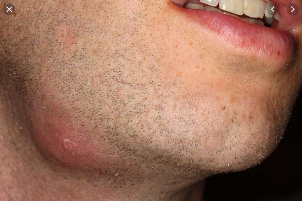 nướu răng nổi mụn nước, nướu răng bị nổi mụn, mụn ở nướu răng, nướu răng nổi mụn, nướu răng bị nổi mụn nước, nướu răng mọc mụn, áp xe chân răng, mọc mụn mủ ở lợi, nổi mụn trắng ở nướu răng, nổi mụn ở nướu răng, mọc mụn ở chân răng, mọc mụn ở lợi trên, bé bị nổi mụn ở nướu răng, nổi mụn thịt ở nướu răng, mọc mụn ở nướu răng, mọc mụn ở lợi