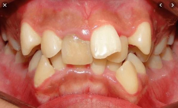 răng bị lồi sĩ, răng lồi xỉ, nhổ răng lồi xỉ, hình ảnh răng lồi xỉ, niềng răng lồi xỉ, răng lòi sĩ, nhổ răng lòi sĩ, răng khểnh và răng lòi sĩ, niềng răng lòi sĩ, cách trị răng lòi sĩ, hình ảnh răng lòi sĩ