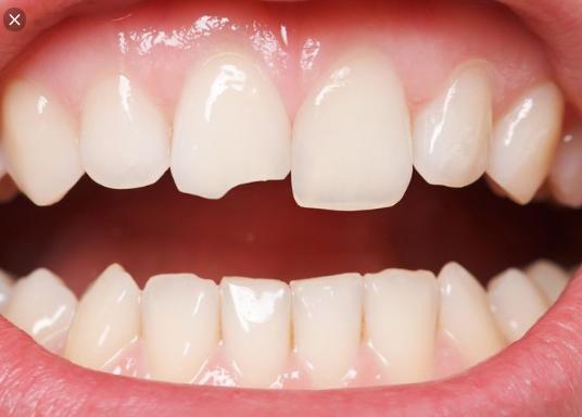 bọc răng sứ vĩnh viễn, bọc răng sứ vĩnh viễn giá bao nhiêu, bọc răng sứ giữ được bao lâu, bọc răng sứ có được vĩnh viễn, bọc răng sứ có được vĩnh viễn không, bọc răng sứ bao lâu, bọc răng sứ bao lâu phải làm lại, bọc răng sứ bao lâu thì hỏng