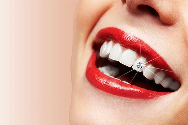 đính đá vào răng khểnh,đính đá vào răng khểnh giá bao nhiêu,hình ảnh răng khểnh đính đá, quy trình đính đá vào răng khểnh, đính đá vào răng khểnh là gì