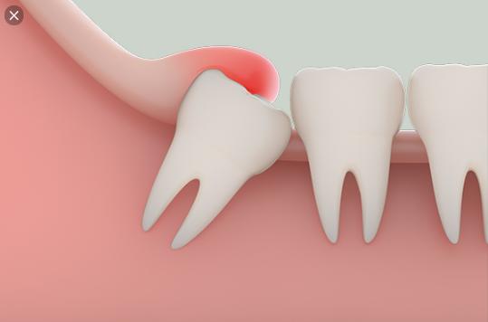 nhổ răng số 8 kiêng ăn gì, nhổ răng số 8 kiêng, nhổ răng số 8 kiêng gì, nhổ răng số 8 kiêng những gì, kiêng ăn gì sau khi nhổ răng số 8, Nhổ răng số 8 xong kiêng gì, nhổ răng số 8 nên kiêng gì, nhổ răng số 8 nên kiêng ăn gì, nhổ răng số 8 có phải kiêng gì không, nhổ răng số 8 cần kiêng, nhổ răng số 8 cần kiêng gì, sau khi nhổ răng số 8 cần kiêng gì, nhổ răng số 8 cần kiêng những gì, nhổ răng số 8 bao lâu thì khỏi, nhổ răng số 8 bao lâu thì lành