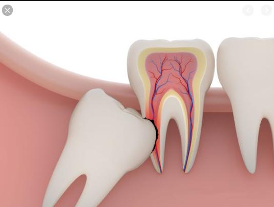 biến chứng nhổ răng khôn, biến chứng nhổ răng số 8, biến chứng nhổ răng, biến chứng nhổ răng khôn hàm trên, biến chứng sau nhổ răng, biến chứng sau nhổ răng khôn, biến chứng sau nhổ răng số 8, những biến chứng sau nhổ răng khôn, các biến chứng sau nhổ răng, biến chứng sau khi nhổ răng khôn, biến chứng sau khi nhổ răng số 8, những biến chứng sau khi nhổ răng khôn, những biến chứng sau khi nhổ răng