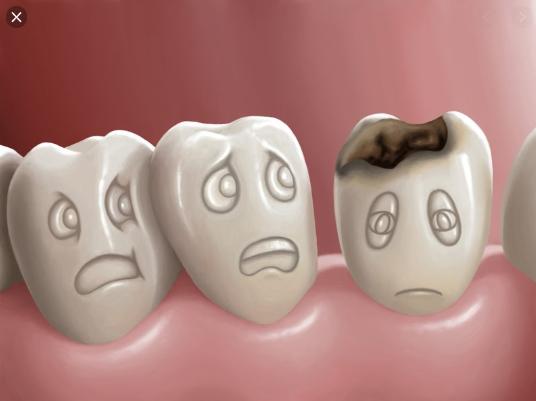 nhổ răng số 8 có nguy hiểm, nhổ răng số 8 có nguy hiểm k, nhổ răng số 8 có nguy hiểm ko, nhổ răng số 8 có nguy hiểm không, Nhổ răng số 8 chết người là có thật