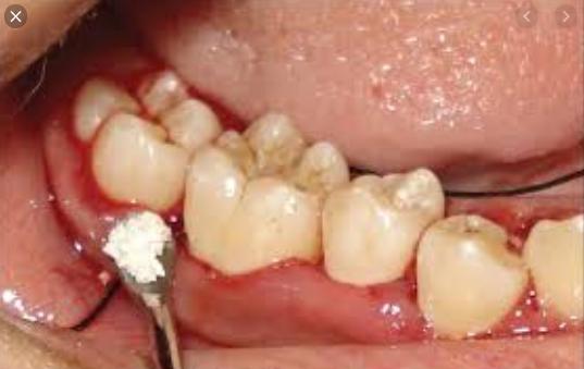 răng số 7 bị lung lay, răng số 7 lung lay, chữa răng số 7 lung lay, nhổ răng khôn làm răng số 7 lung lay