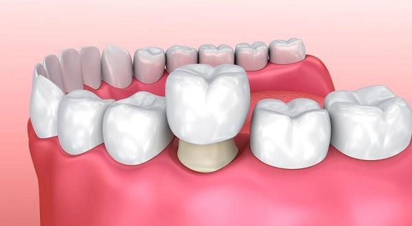 nhức răng uống panadol, nhức răng uống panadol được không, nhức răng uống thuốc panadol được không, nhức răng có uống panadol được không
