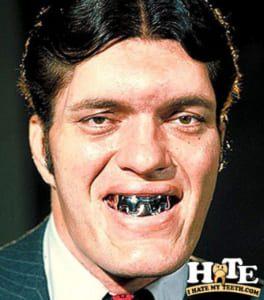 hàm răng xấu nhất thế giới, những hàm răng xấu nhất thế giới, người có hàm răng xấu nhất thế giới, hình ảnh hàm răng xấu, nụ cười xấu nhất thế giới