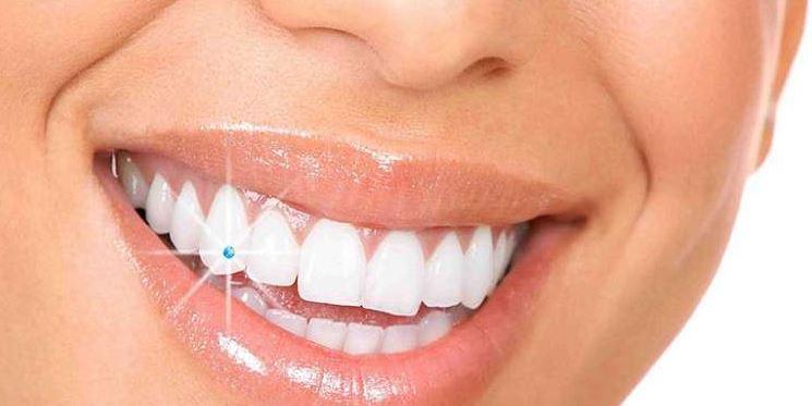 đính đá vào răng có hại không, gắn đá vào răng có hại không, đính đá vào răng có đau ko, đính đá vào răng có tốt không, đính đá vào răng có nguy hiểm không, đính đá vào răng