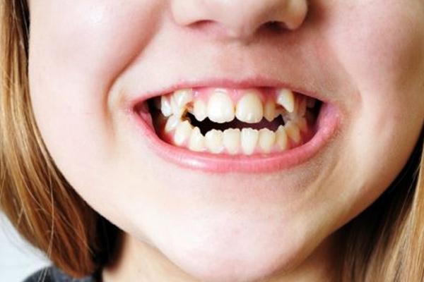 nằm mơ mọc răng, nằm mơ mọc răng đánh con gì, nằm mơ mọc răng khôn, giải mã giấc mơ mọc răng, nằm mơ mọc răng mới, làm mơ mọc răng, nằm mơ mọc răng khểnh, giấc mơ mọc răng khôn, mơ mọc răng