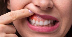 viêm nướu răng có mủ, bị viêm nướu răng có mủ