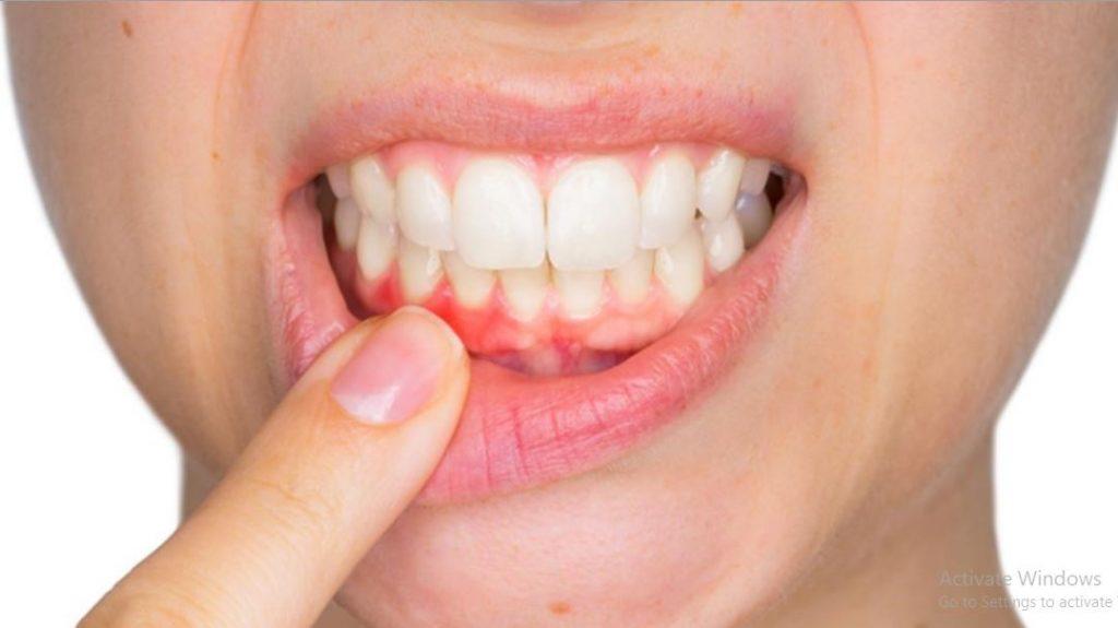 nguyên nhân gây bệnh viêm nướu là gì, nguyên nhân viêm nướu là gì, viêm nướu là gì, viêm nướu răng là gì, bệnh viêm nướu là gì, viêm lợi là bệnh gì, viêm nướu răng là gì