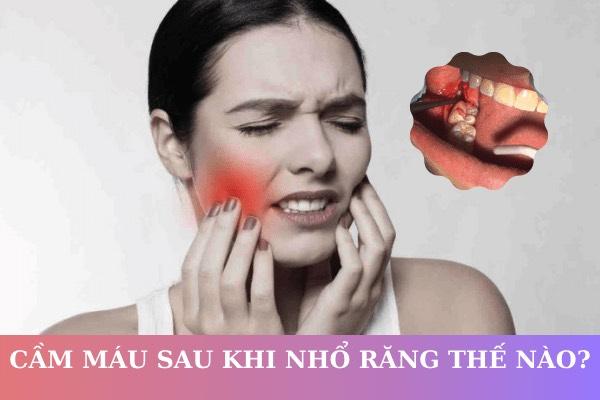 Làm cách nào để cầm máu sau khi nhổ răng? Kỹ năng cần biết