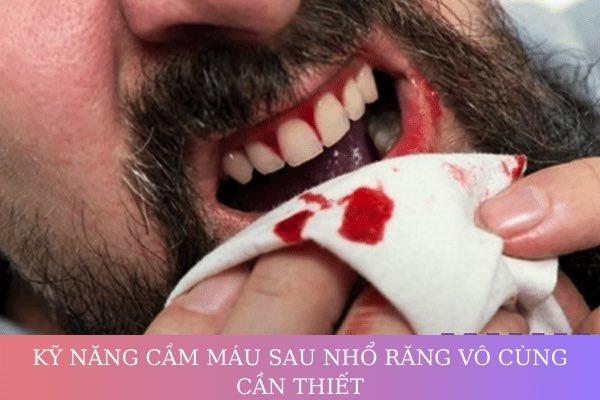 làm cách nào để cầm máu sau khi nhổ răng, cách cầm máu sau khi nhổ răng khôn, cách cầm máu sau khi nhổ răng hàm, cách cầm máu sau khi nhổ răng cấm, cách cầm máu sau khi nhổ răng số 8, cách cầm máu nhanh sau khi nhổ răng, cầm máu sau khi nhổ răng khôn, cầm máu sau khi nhổ răng hàm, cầm máu sau khi nhổ răng, mẹo cầm máu sau khi nhổ răng, cách cầm máu sau khi nhổ răng, thuốc cầm máu sau khi nhổ răng, làm sao cầm máu sau khi nhổ răng