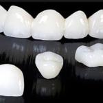 Bọc răng sứ đẹp vĩnh viễn là lừa đảo?