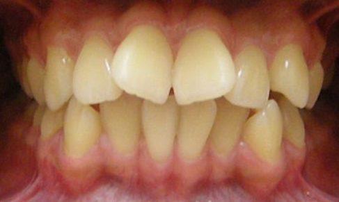 Răng cánh bướm và cách chữa răng cánh bướm