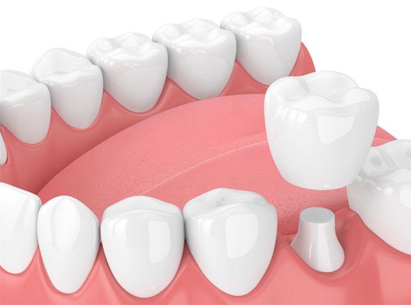 Bảng giá bọc răng sứ 2021 | Chi phí bọc răng sứ giá bao nhiêu tiền hiện nay?